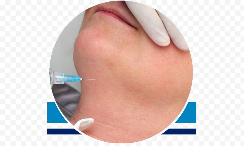 Disease - Natural Image Center Of Aesthetic Medicine And Spa Botulinum Toxin Platelet-rich Plasma - Mouth - Botox Free PNG